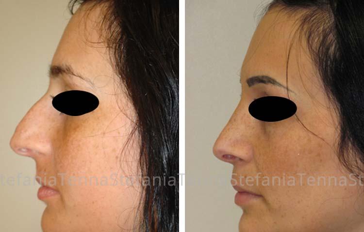 Chirurgia Plastica Estetica naso