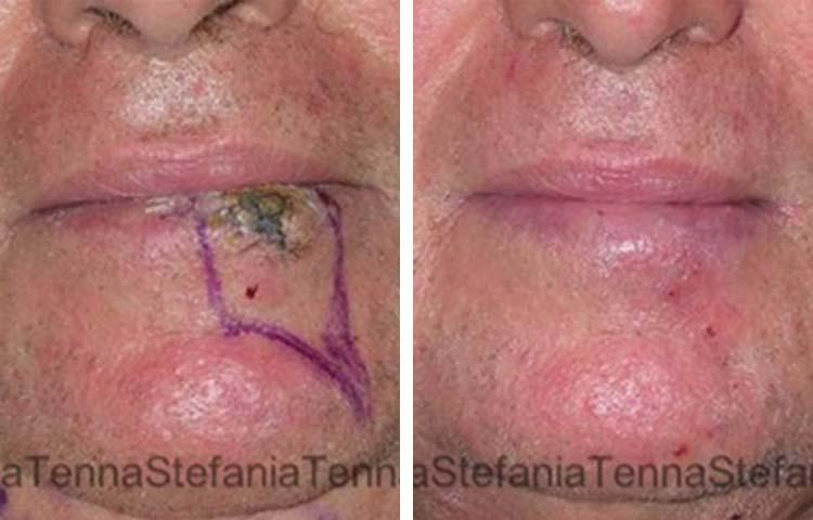 asportazione carcinoma labbro ricostruzione