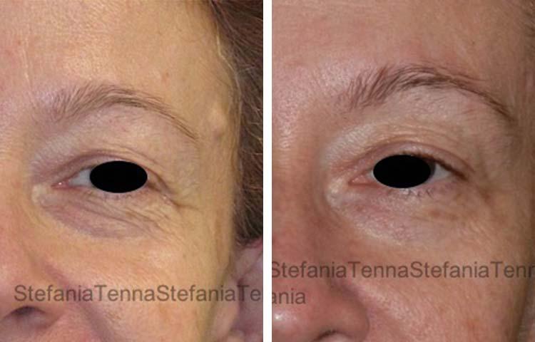 botox e laser palpebre