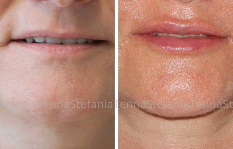 correzione contorno labiale con acido ialuronico