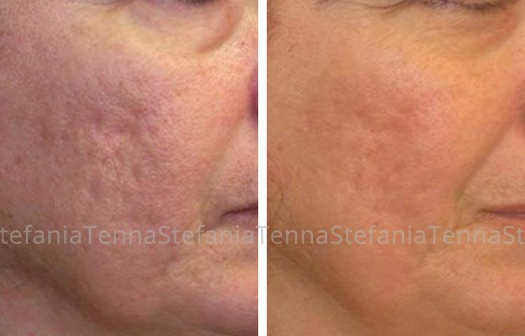 correzione laser frazionato esiti di acne